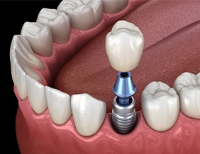 Animated implant supported dental crown placement