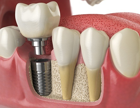 Animated dental implant placement process
