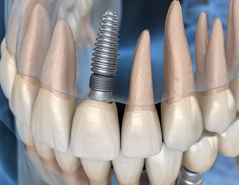 3D animated implant supported dental crown